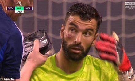 Rui Patricio: Com a cara aberta, não sofre golos do Manchester City e ainda defende 3 penaltis! (VIDEO)